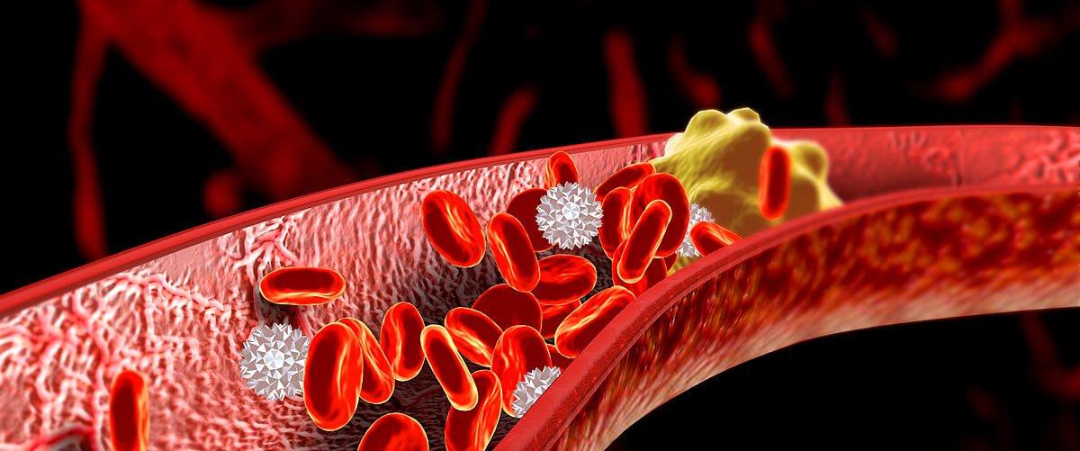Медицинский центр Био-Лайн 1 thrombose